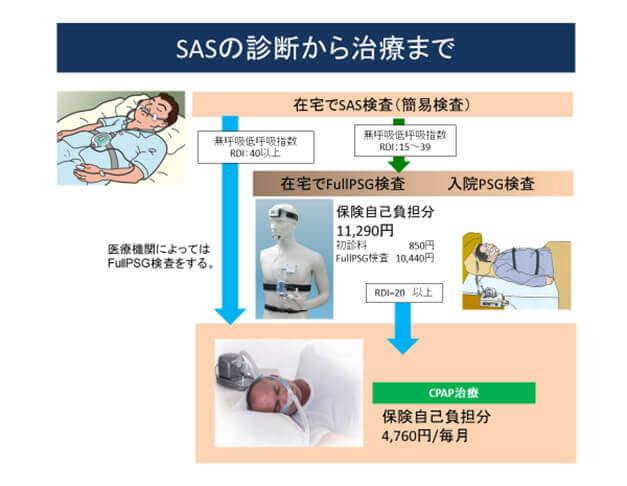 SASの診断から治療まで
